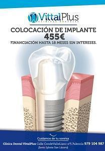 cartel implante
