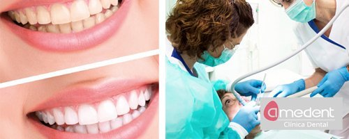 Clínica Dental Amedent